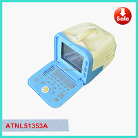 Medical Diagnostic Ultrasound Machine & Ultrasound Equipment For Pregnancy