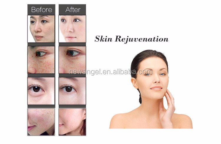 NEW facial skin rejuvenation women body hair removal opt with ce