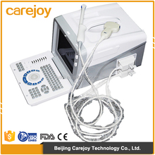 China Medical Cheap price of digital 10-inch monitor ultrasound machine for pregnancy scan