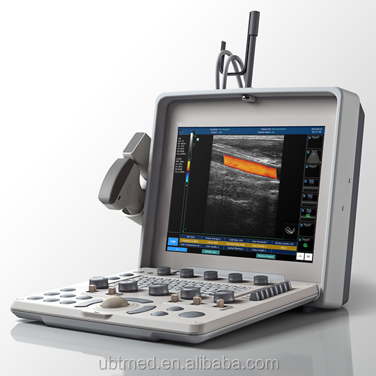 Quality and quantity assured sonoscape s8 portable ultrasound machine