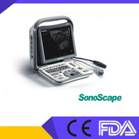 The Promotion Cheap Sonoscape A6 B/W Portable Ultrasound Machine FDA,CE Approved ,The Best Price Sonoscape Ultrasound Machine