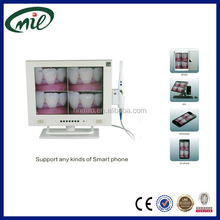 High pixels 15 inch LCD WI-FI super cam intra oral camera for dental chair