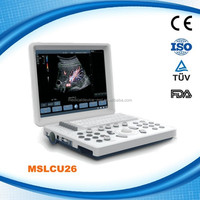 Lowest Price !! New Advanced handheld Color Doppler Ultrasound Machine Made in China MSLCU26H