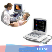 Widely Used compact laptop Color Doppler medical diagnostic Ultrasound machine