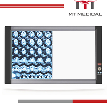 x-ray film viewer led x-ray film light box medical led x ray negatoscope