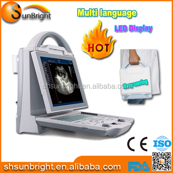 French language software ultrosonic system at cheap price/portable Led ultrasound