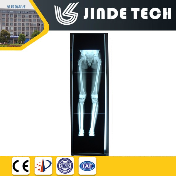 LED orthopedic x ray film viewing box, Vertical light box for long bone, pediatric x-ray viewer