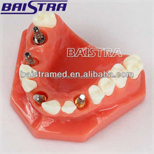 New design CE Orthodonitc implant with 4 nails plastic dental teeth model