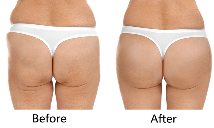 buy injectable dermal fillers pure hyaluronic acid buttock injection