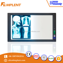 China Best quality LED mammography negatoscope, negatoscopio with CE certification