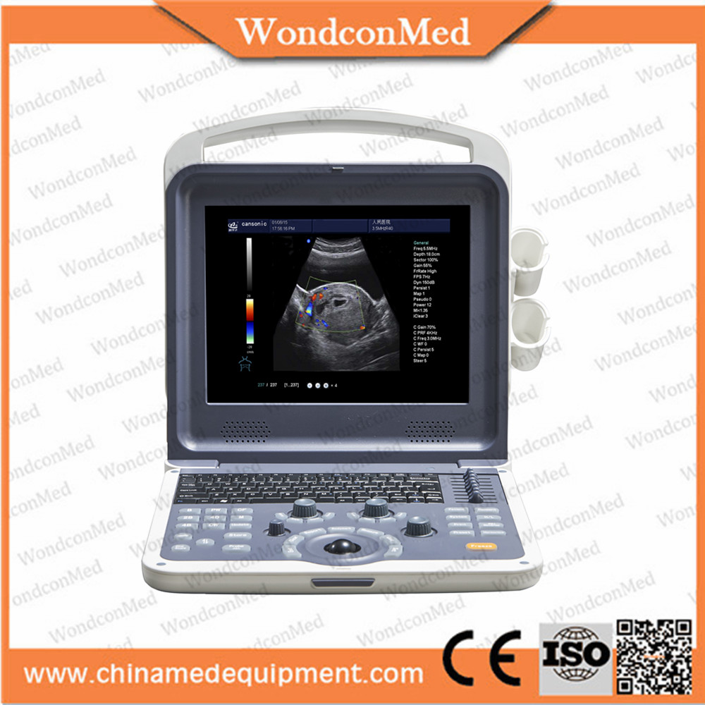 Medical Equipment Windows XP system ultrasound diagnostic system for sale