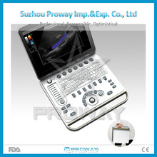 Hospital Clinic Used Color Doppler,Portable PC Based Ultrasound Machine with Favorable Price(PRUS-SC50)