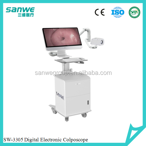 Sanwe SW-3304 Digital Video Colposcope with low price, Video Colposcopy Imaging System