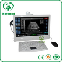 MY-A006 Hosptial 18.5 inch tabletop based Full Digital touch screen PC portable B ultrasound scanner for Scan