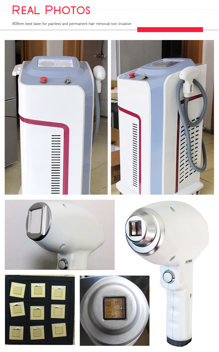 New brand high power no channel 755nm 808nm 1064nm laser hair machine