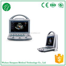 DCU12 Portable Color Doppler Ultrasound Price for Hospital