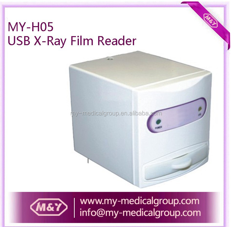 High Quality Low Price USB Dental X-ray Film Reader / x-ray film digitizer scanner