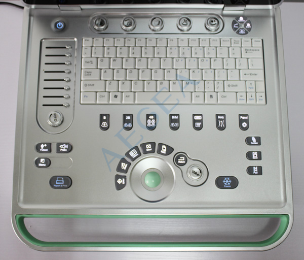 carrying hospital equipment medical used 15 inch LED screen portable laptop handheld ultrasound machine for obstetric