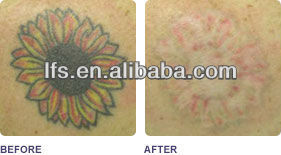LFS-Q6 laser tattoo removal nd yag laser price with ce