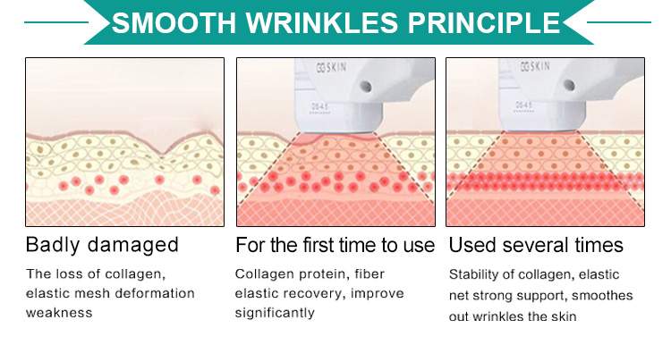 2019 Hot Selling low price hifu skin lifting wrinle removal with CE certificate