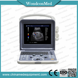 Portable color doppler 4D ultrasound machine with iso marked
