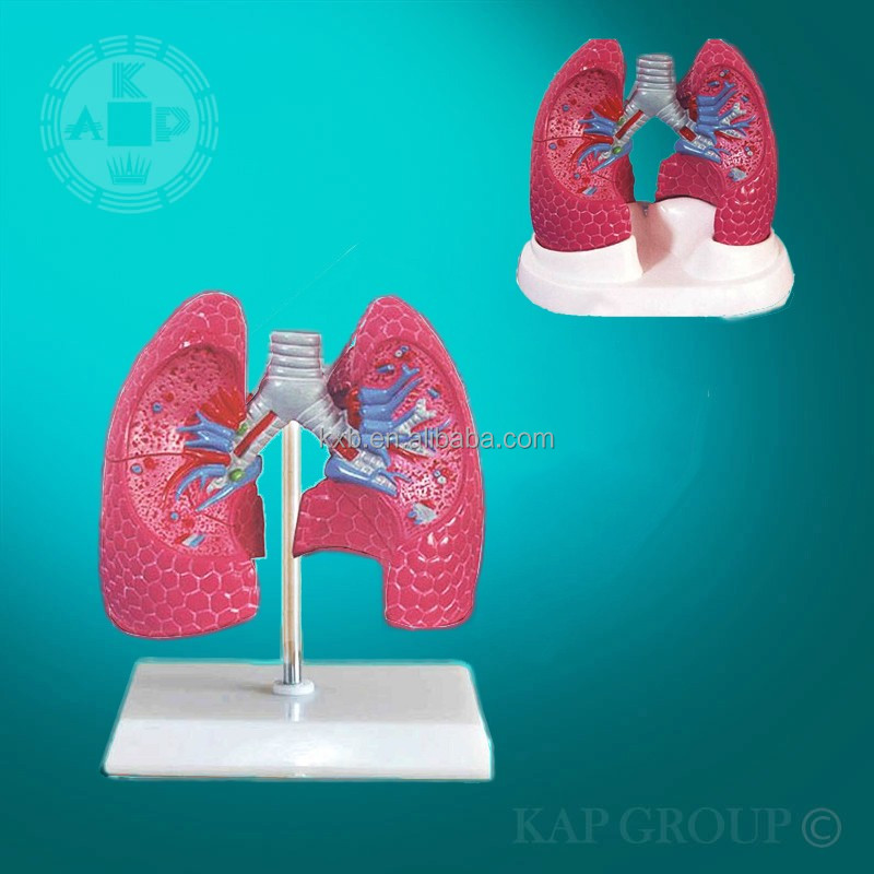 artificial anatomical lung model,lung cancer anatomy model