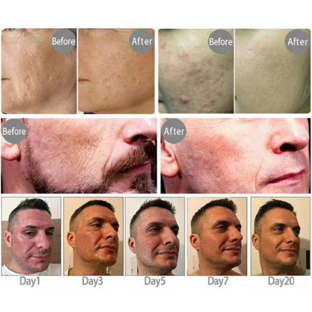 mezotix skin rejuvenation