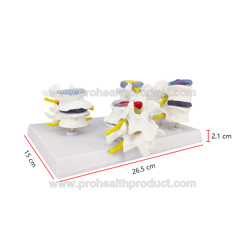 Orthopedic Model Lumbar Disc Herniation Model Pathology Lesion Lumbar Spine Combined Model