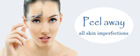 Lactic Acid Peeling Exfoliating, dark marks, hyperpigmentation, wrinkles, Stimulating collagen