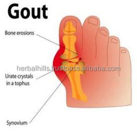 Herbal Dietary Supplement for Gout care