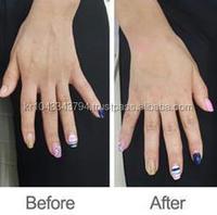 plla hyaluronic acid injections for buttocks breast for wrinkle removal