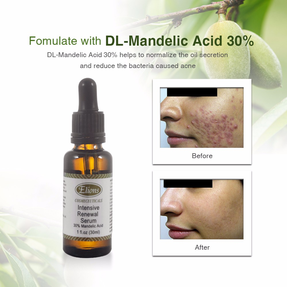 high quality mandelic acid 30% anti acne skin whitening serum