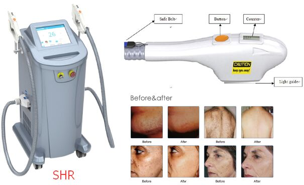 Hot selling new design 2 handles SHR OPT IPL/ipl rf/IPL hair removal with FDA TGA certification