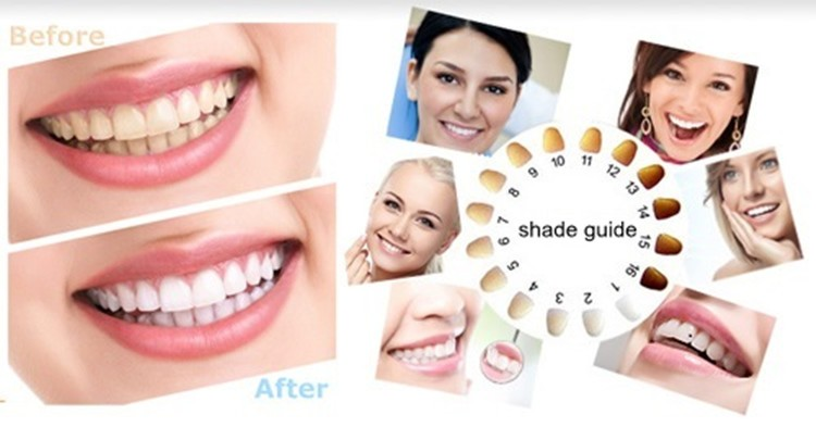 Home Use Cosmetics White Teeth Whitening Pen Non Peroxide In 2016