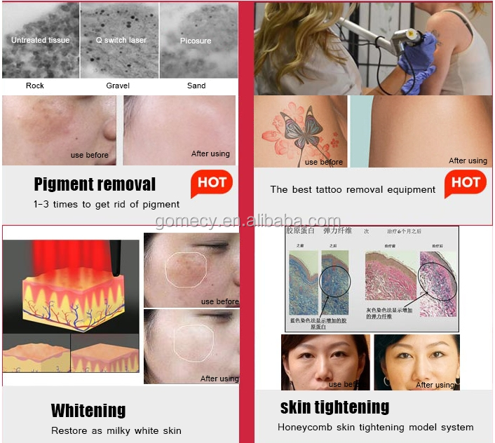 Reasonable prices picosecond cost laser skin treatment/skin spot tag remover/tattoo cleaner.jpg