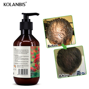 Private label manufacturers hair growth restore shampoo for hair loss care treatment 300ml wholesale product