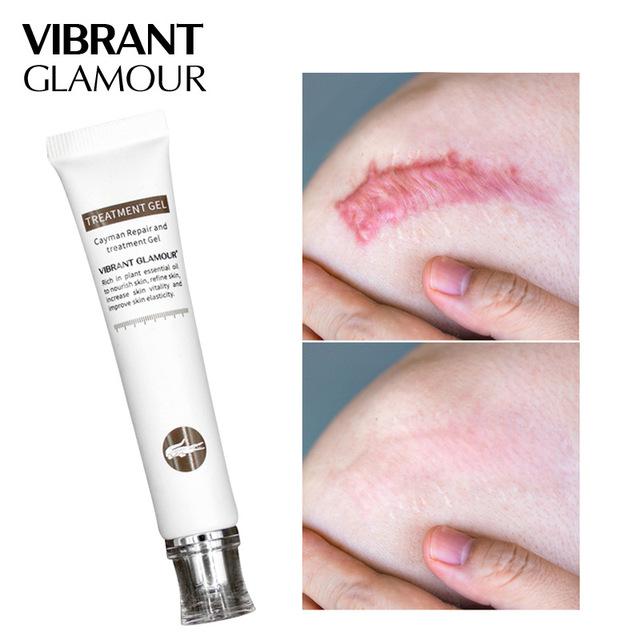 Vibrante Glamour 30ml De Reparación Cicatriz Gel Eliminación Cicatriz Crema Para El Acné Tratamiento Marcas Para La Cara Y El Cuerpo De La Pigmentación Corrector De Piel Buy Gel De Reparación