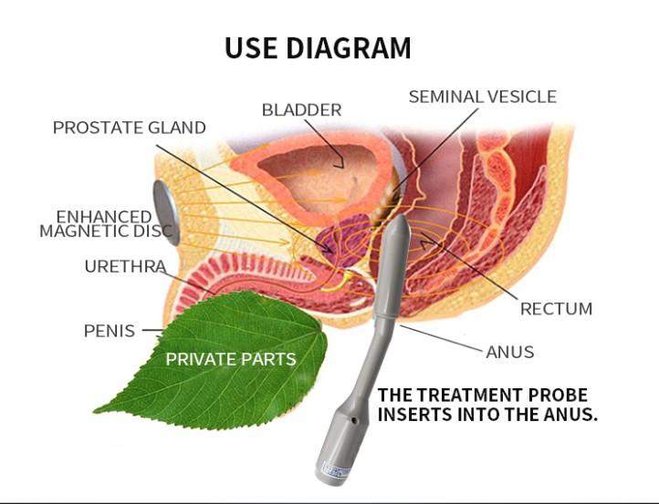 prostatitis massage treatment)