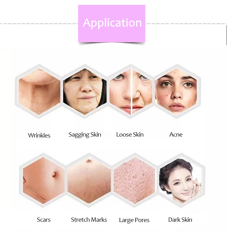 The Hot Sale Portable Thermagical Microneedle Fractional Rf Machine For Skin Tightening