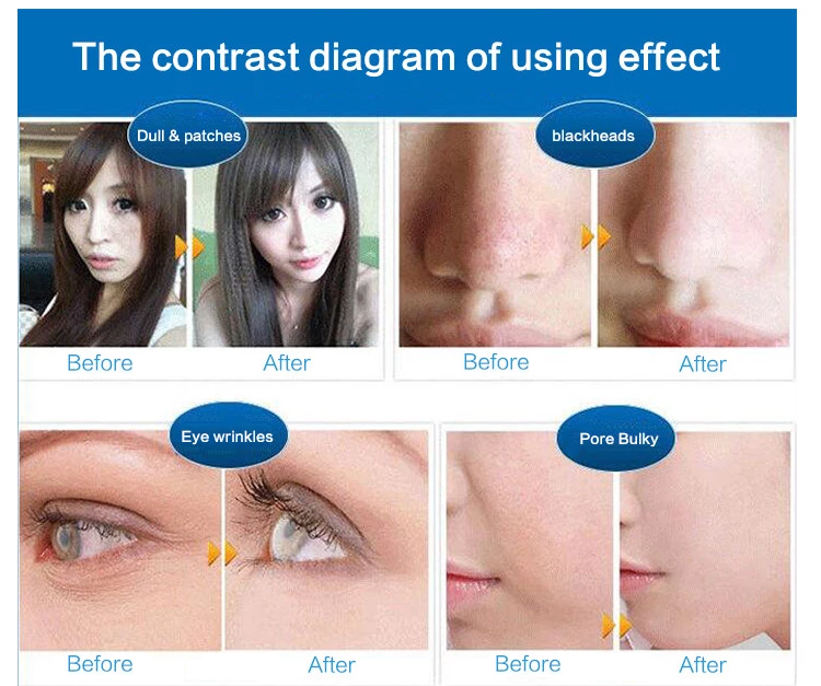 Home Use Portable Microcurrent face scrubber cosmetic spatula ultrasonic skin scrubber facial Peeling machine