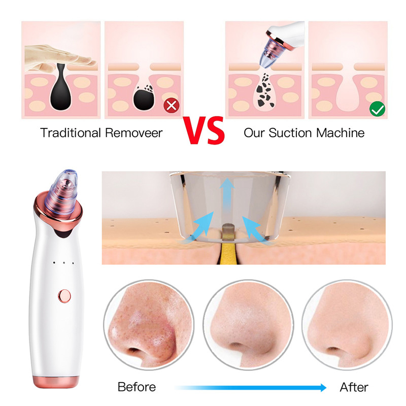 Blackhead Remover Kit Skin Care Electric Blackhead Remover for face
