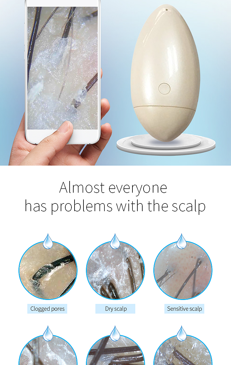 Wireless scalp and hair analyzer analyzer wifi launch connect phone tablet compatible with ios Windows Android system