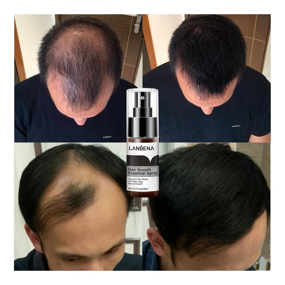 LANBENA herbal instant hair grow spray hair growth women free shipping