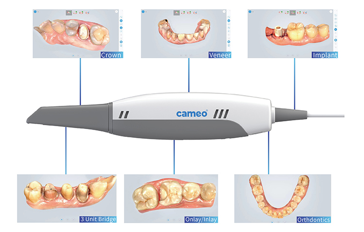 stl format 3d dental scanner compatible with exocad and other software