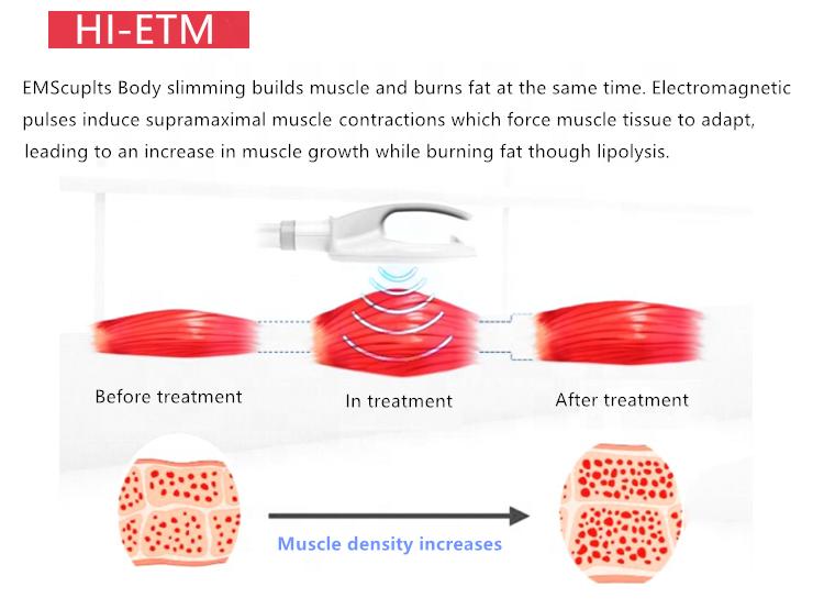 筋肉建築システム機械を細くするoemの高輝度電磁ボディ輪郭