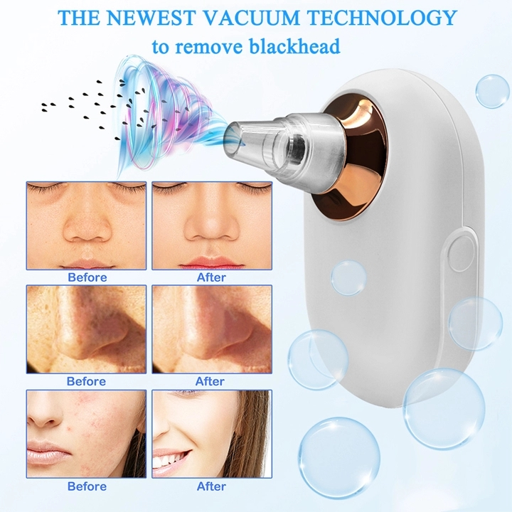 New Arrivals Low Noise Blackheads Acne Remover Face Cleaner Vacuum Suction Beauty Device Blackhead Remover Vacuum