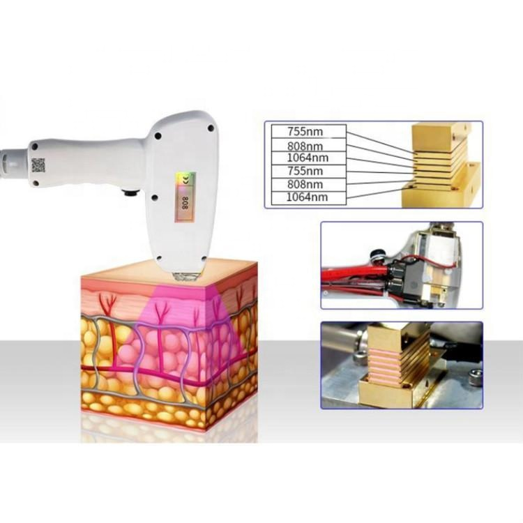2020 Hot sales 808 diode laser machine with 3 wavelengths 755 1064 808nm hair removal machine