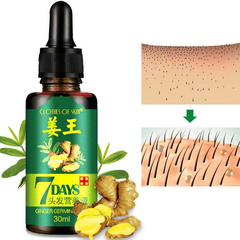 30ML Ginger Germinal Oil Hair Growth Essential Oil Hair Loss Treatment Natural Ginger Hair Growth Liquid Ginger Oil Essential