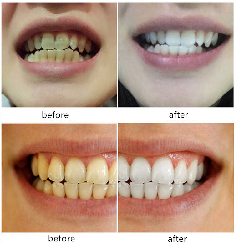 Teeth Whitening Water Oral Hygiene Cleaning Yellow Teeth Tartar Smoke Stains Tea Stains Tooth Stones Mouth Bitter Bad Breath oem