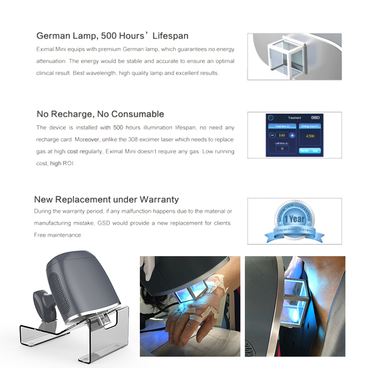 mini portable therapy price for uvc light exciter eyes bulb lamps system excimer laser 308nm psoriasis vitiligo machine